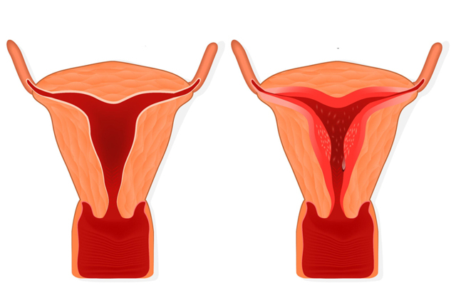 Психосоматические причины гиперплазии эндометрия: в чем суть?