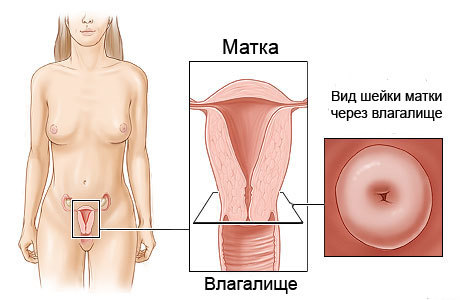 Эндометриоидная киста шейки матки: особенности,симптомы,лечение