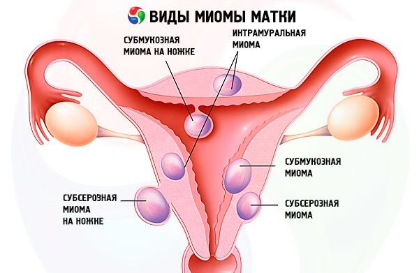Гормоны при миоме матки – показания, обоснование, препараты