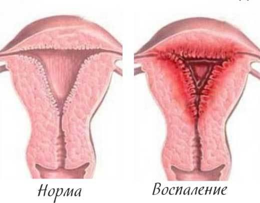 Воспаление матки после родов: особенности и причины явления