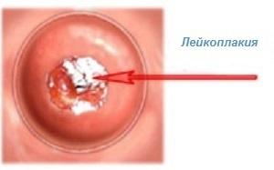 Эритроплакия шейки матки: что это, причины, симптомы, лечение