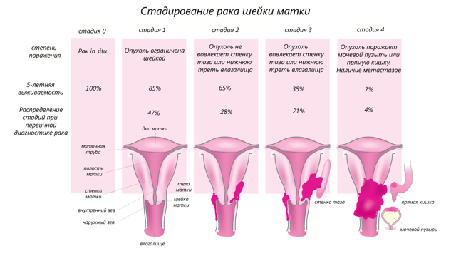 Лучевая терапия при раке шейки матки: методики проведения