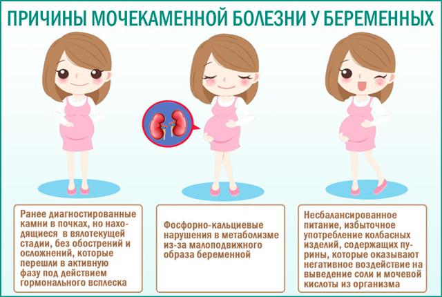 Камни в почках при беременности: причины, лечение