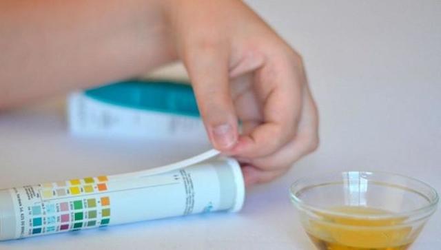 Ацетон в моче при беременности: причины, симптомы, диагностика, лечение, профилактика
