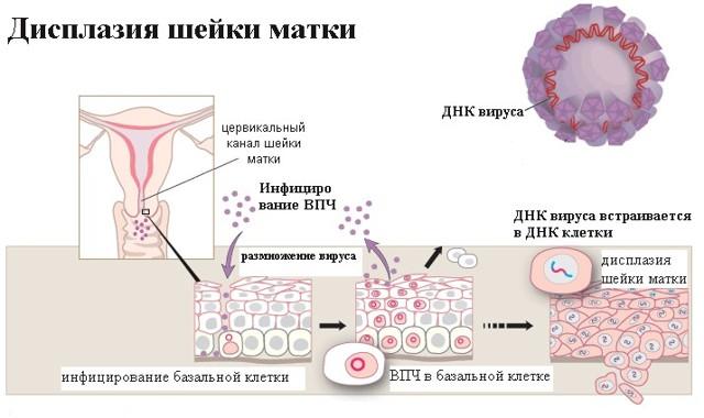 Дисплазия шейки матки 1 степени: причины, симптомы и лечение
