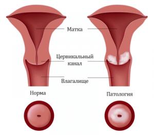 Рак шейки матки 2 стадия: виды, симптомы и лечение