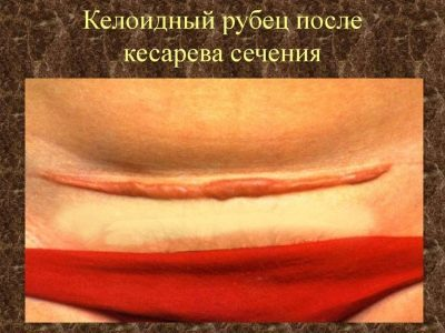 Рубец на матке после кесарева может быть опасен своими осложнениями для беременной женщины