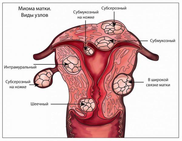 Гистероскопия при миоме матки: метод лечения и диагностики