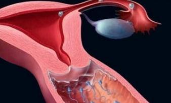 Бесплодие после аборта: лечение и диагностика