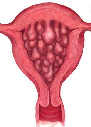 Гиперпластический процесс эндометрия: особенности заболевания, причины, симптомы и лечение