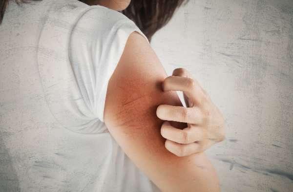 Сухость кожи при беременности: признаки и причины сухой кожи, особенности ухода, запреты