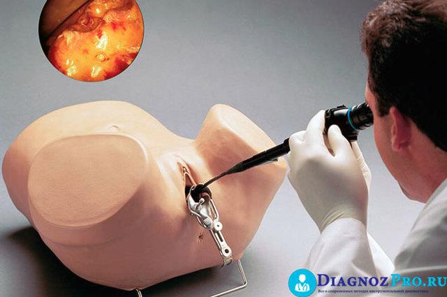 Кровотечение после соскоба матки, что делать?