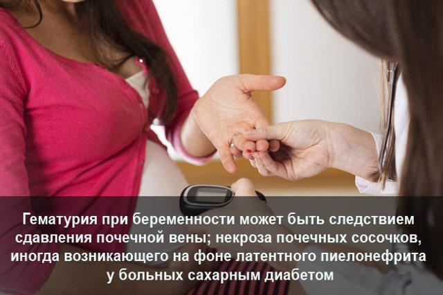Эритроциты в моче при беременности: причины появления, опасно ли, как лечить