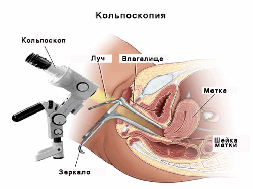 Эндоцервикоз шейки матки: причины, симптомы и лечение