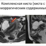 МРТ матки: особенности проведения процедуры, информативность