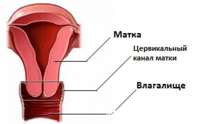 Парацервикальные кисты шейки матки: что это такое?