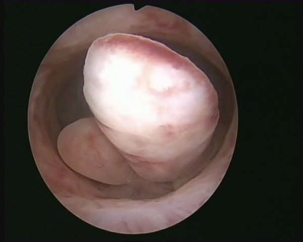 Грануляционный полип после удаления матки: причины, лечение