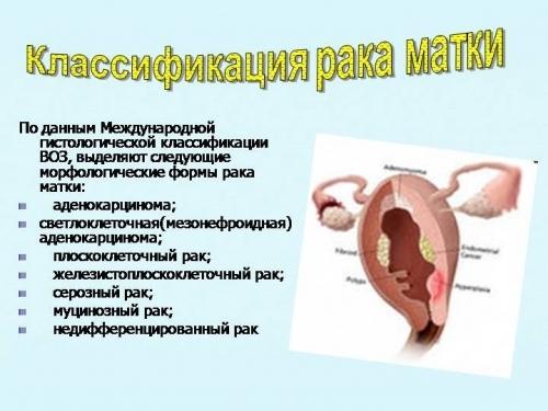 Рак эндометрия матки на УЗИ: признаки и характеристики