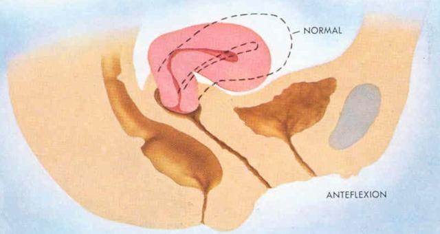 загиб матки после родов, разновидности загибов, причины и методы лечения