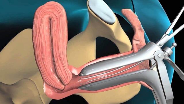 Операция при гиперплазии эндометрия матки: виды вмешательств
