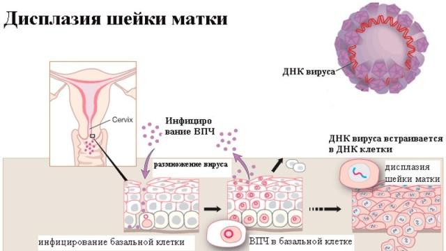 Дисплазия шейки матки 3 степени: факторы возникновения, симптомы и лечение