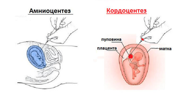Резус конфликт при беременности: причины, опасность