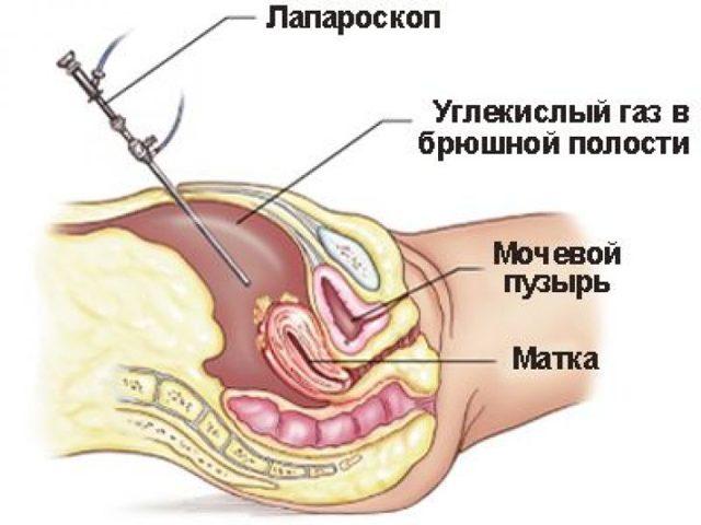 Диагностика эндометриоза: методы, способы, оборудование