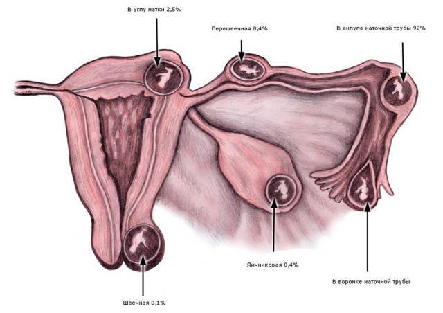 Виды внематочной беременности: особенности протекания и лечение