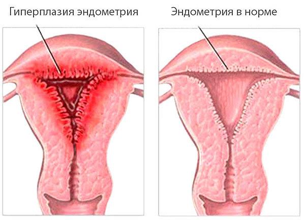 Полиповидная гиперплазия эндометрия: симптомы, причины и лечение