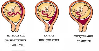 Низкая плацентация при беременности: что это такое, причины, симптомы, чем грозит, как поднять