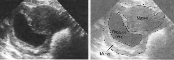 Как избавиться от беременности 6 недель с миомой?