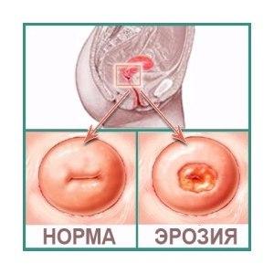 Радиоволновое лечение лейкоплакии шейки матки: плюсы и минусы