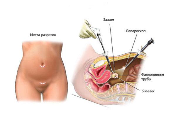 Сальпинготомия при внематочной беременности: особенности и ход процедуры