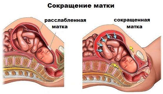 Тонус матки перед родами: признаки состояния и его опасность