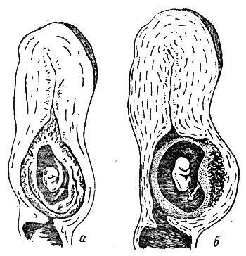 О беременности вне матки