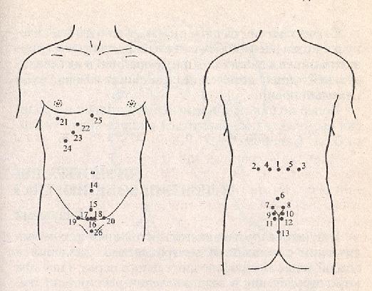 Лечение эндометрита пиявками: особенности и эффективность