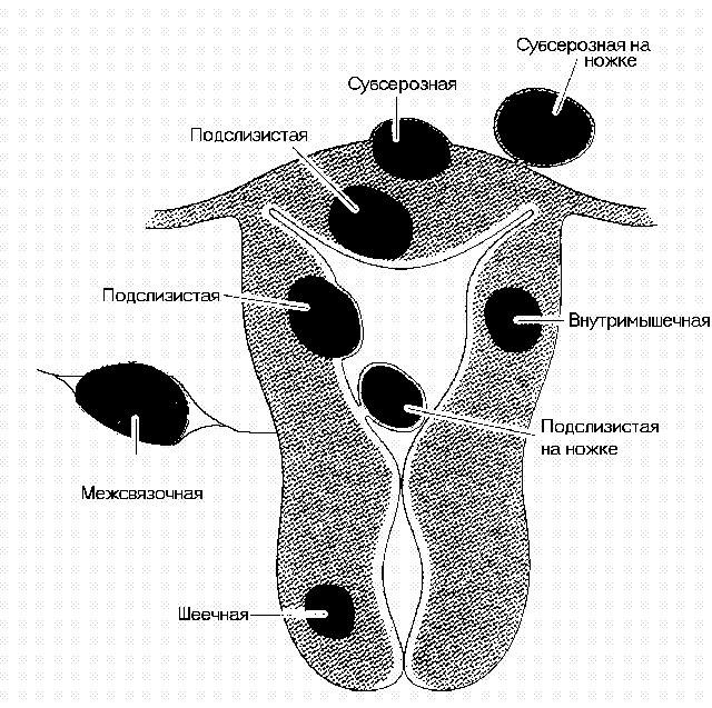 Субмукозная миома матки: особенности, диагностика и лечение узла