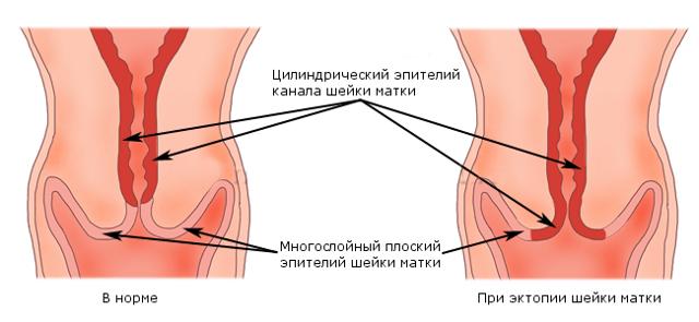 Эрозия шейки матки при беременности: особенности и осложнения