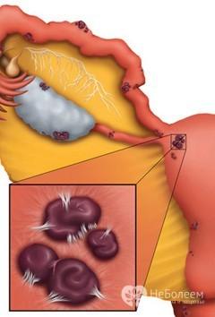 Выделения при эндометриозе: их виды и характеристика