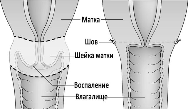 Ампутация шейки матки по Штурмдорфу: ход и особенности