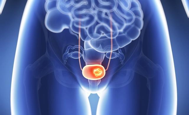 Миома на задней стенке матки: особенности и симптоматика