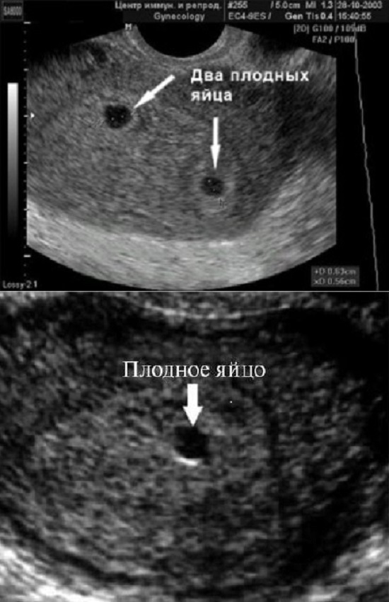 Фото при УЗИ при беременности: разновидности, примеры