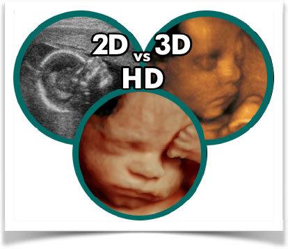 Вредно ли УЗИ при беременности для плода: исследования ученых, мифы, как часто делают за границей