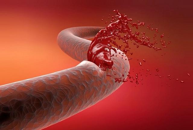 Полипэктомия полипа матки: методика и цели процедуры
