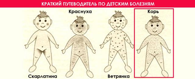 Краснуха при беременности: причины, симптомы и лечение