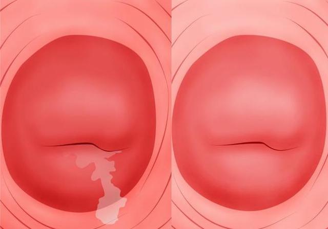 Цервикоз шейки матки: причины развития и способы лечения