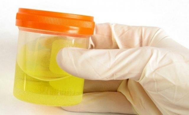Повышен билирубин при беременности: причины и лечение