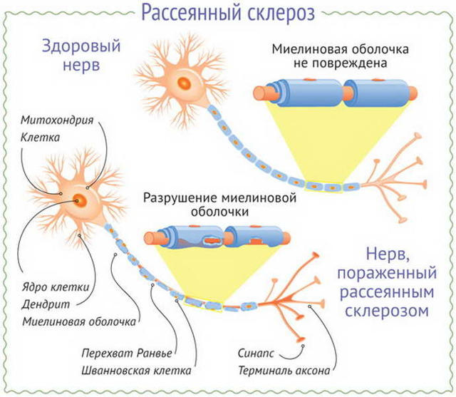 Рассеянный склероз и беременность: причины и симптомы, влияние беременность на болезнь. опасность, лечение