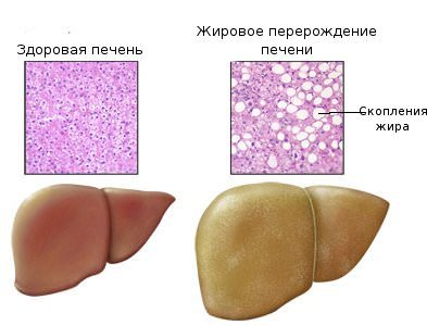Гепатоз при беременности: причины, симптомы и признаки, диагностика, влияние на плод, лечение и профилактика