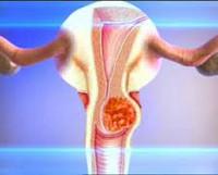 Последствия дисплазии шейки матки: осложнения, перерождение в онкологию, вероятность рецидива
